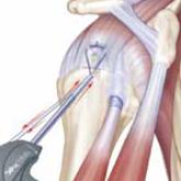 Schulter Rotatorenmanschettenlaesion